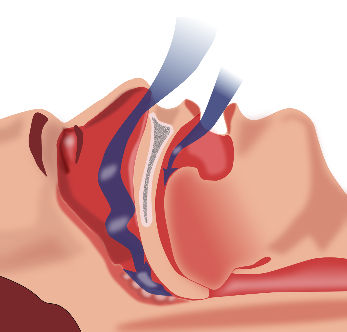 Sleep Apnea Doctor Treatment Northborough, MA